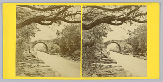 Stereoscopic View