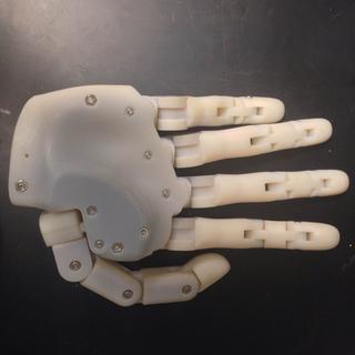 Prosthetic hand (3D print).