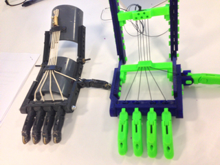 3D printed prosthetic hand and prototype